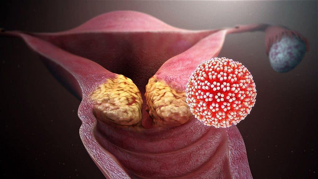 a szemölcs sötét lehet vastagbélrák papillomavírus