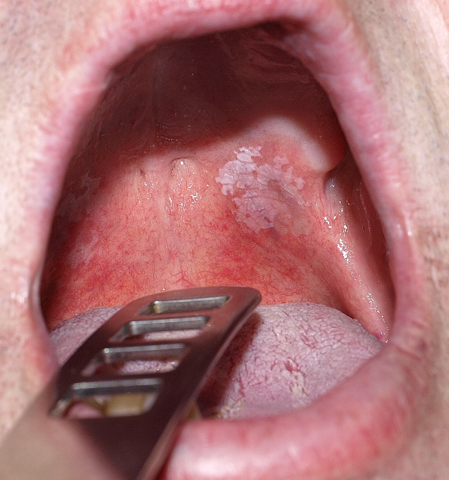 hpv vírus nyelvrák vérszegénységek típusai