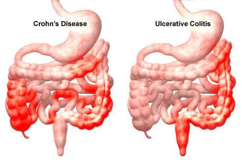 Krónikus gyulladások bél helminthiasis kezelése jó gyógymód minden féregre