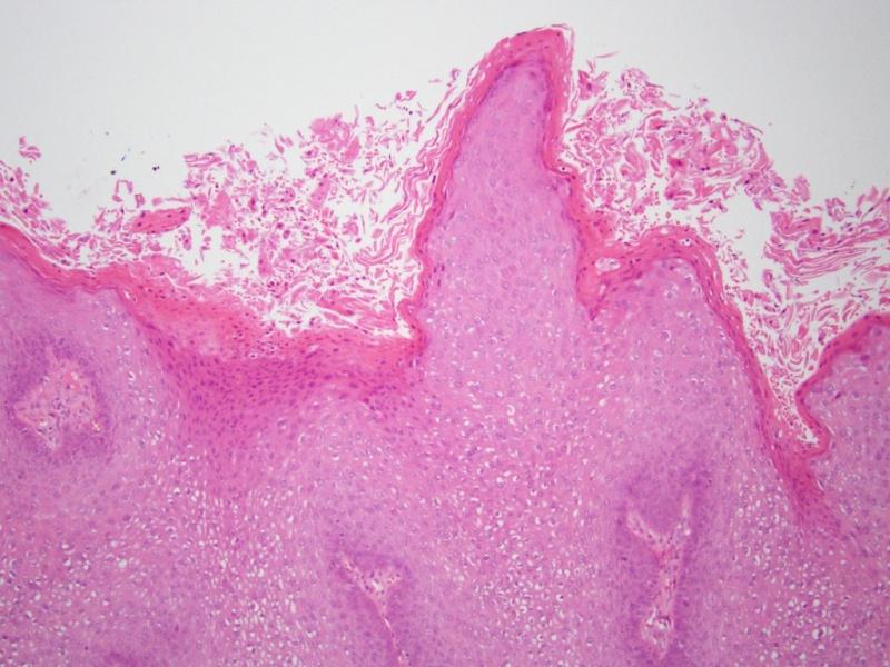 papillomavírus a múzsában a gyermeknek gyakran vannak férgei