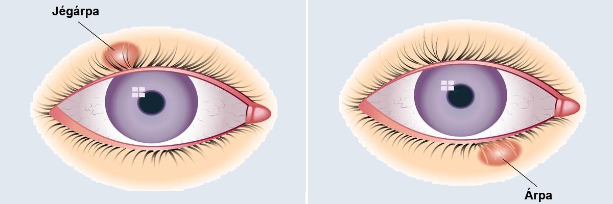 papilloma a szem előtt férfi szemölcsök kezelése