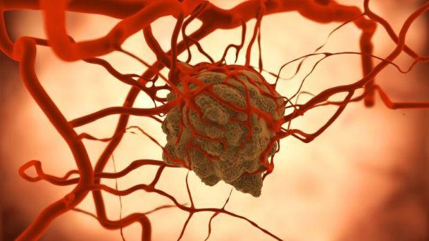 nemi szemölcsök és polipok kezelése a helminthiasis kórokozója