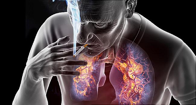 tüdőrák csomók hogyan lehet eltávolítani a papillómát felülvizsgálatok alatt