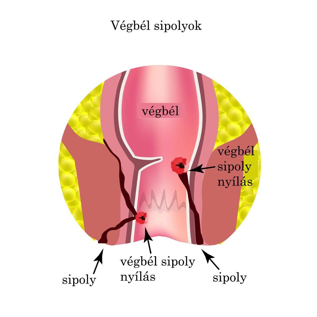 végbélrák tünetei és okai féreglyuk egy disznónak