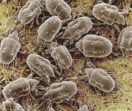 Paraziták a szervezetünkben: mikor gyanakodjunk? - A nyálkahártya és a paraziták tisztítása