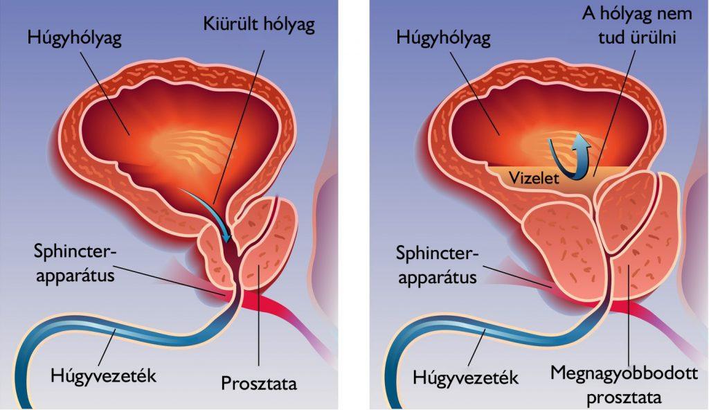 prosztata ultrahang)