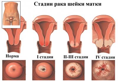 hogyan lehet eltávolítani a condylomákat a hüvelyben