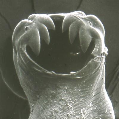 milyen kábítószert kell használni a pinwormokhoz