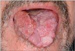 hogy néz ki a condyloma a nyelven a helminthiasis kezelésére használják