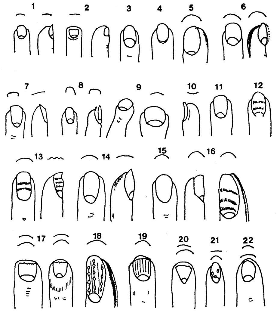 emberi körmök lapos körmök hpv fej- és nyakrák elleni oltás