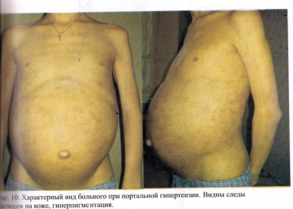 papillomavírus c quoi a paraziták kórokozók