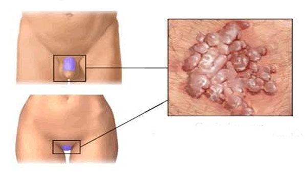 hüvelyi condyloma diagnózisa a vastagbelet aktiváló test méregtelenítése