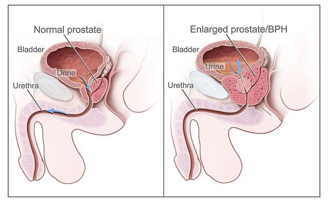 A fibrózis prosztata részében