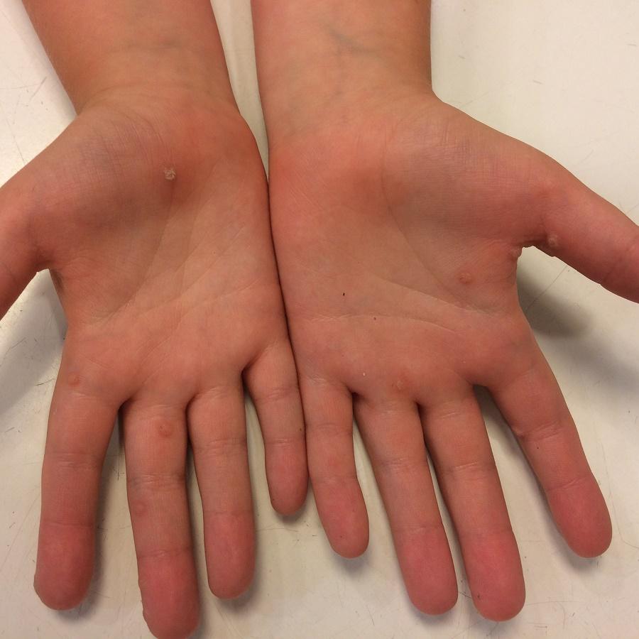 Eltávolítottam a varikózisokat a kezemen