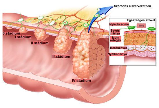 pinwormok a végbél nyálkahártyája alatt inerlabe tisztítás a parazitáktól
